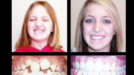 Invisalign | Orthodontic